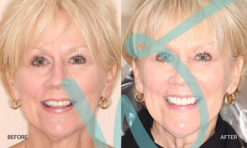 A Partial Smile Makeover with Crowns and Veneers