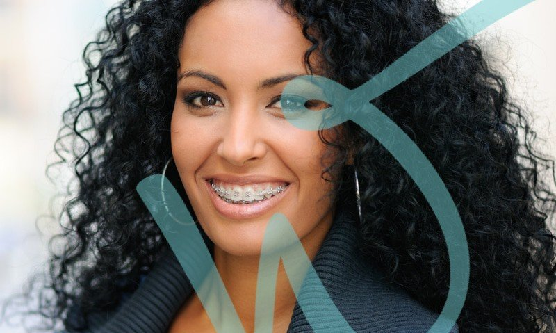 Top 5 Advantages of Invisalign vs Braces for Your Smile