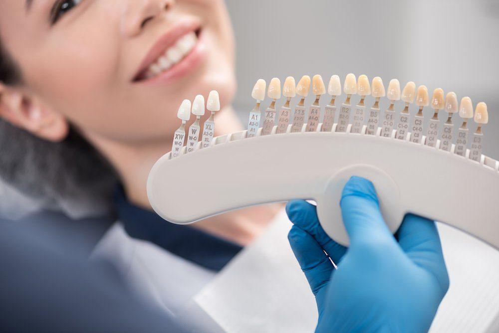 Dentist hand holding up veneer selections